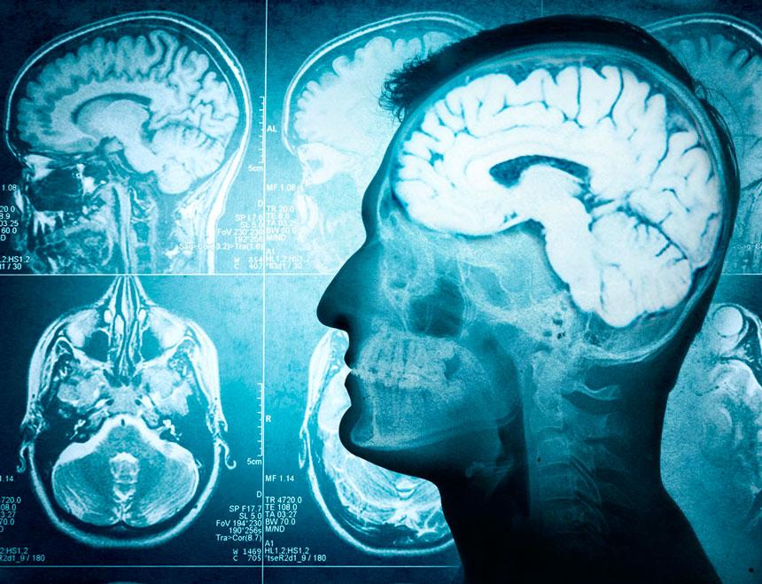 Pilates-atividades-cerebrais