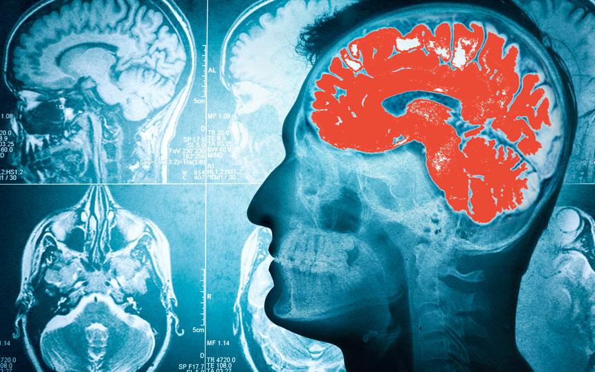 esclerose-múltipla-3
