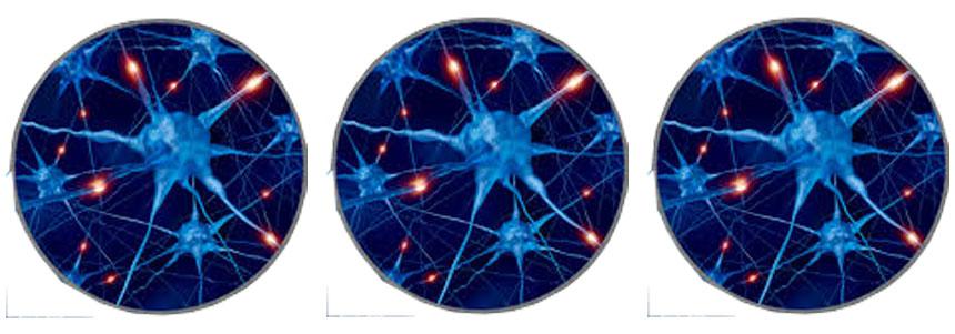 esclerose-múltipla-4