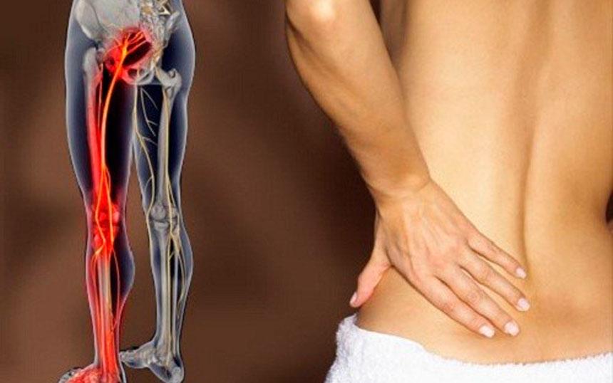 Resultado de imagem para dor no nervo ciático