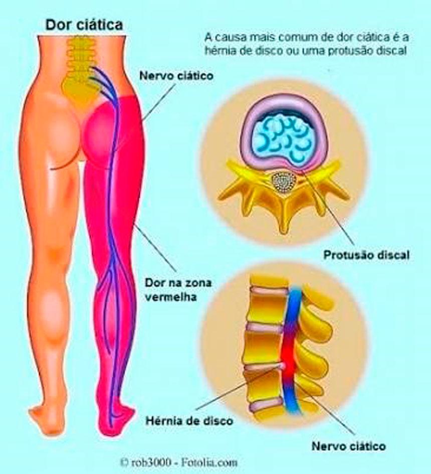 nervo-ciático4
