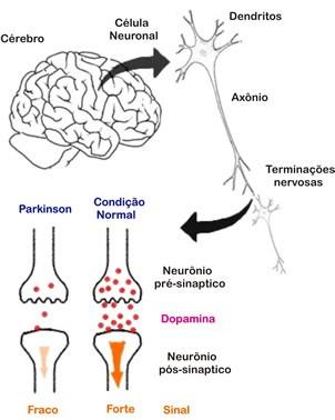 doença-de-parkinson-7