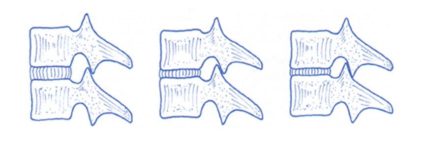 lombalgia-crônica-3