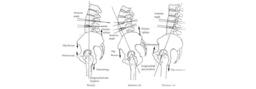 lombalgia-crônica-5 - Blog Pilates