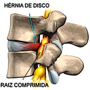 hérnia discal lombar 1