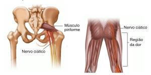 hérnia discal lombar 2