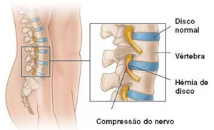 hérnia discal lombar 3