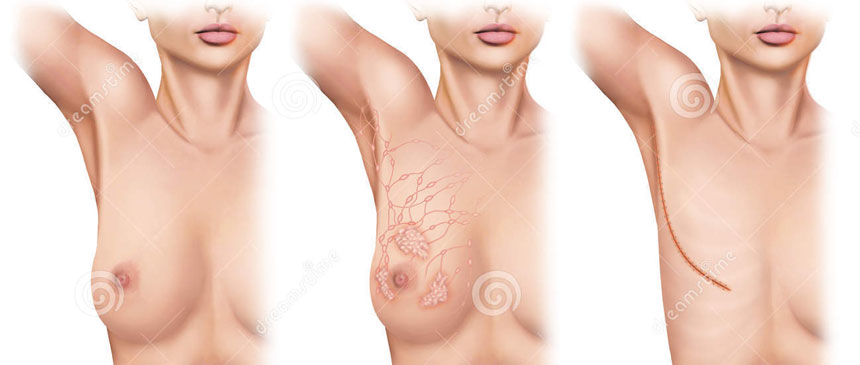 mastectomia-2