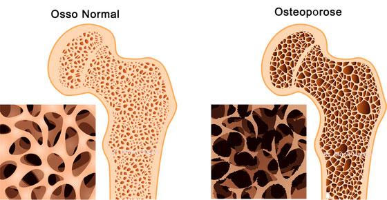 tratamento-osteoporose-(1)