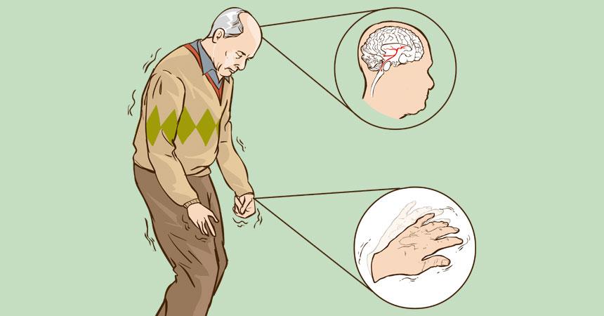 Melhora do Equilíbrio Postural em Portadores de Parkinson