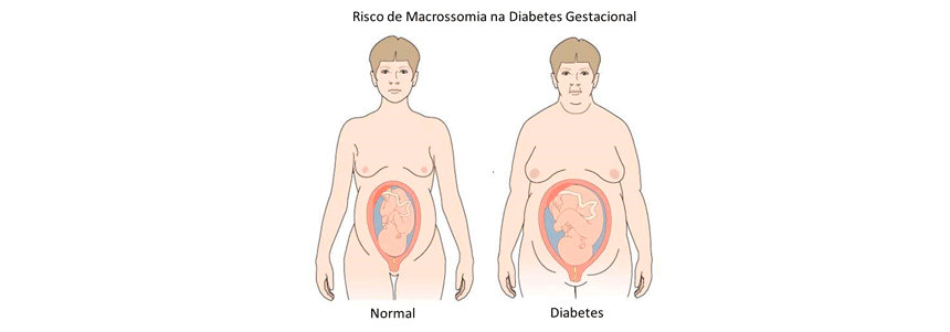 Gestantes-Obesas
