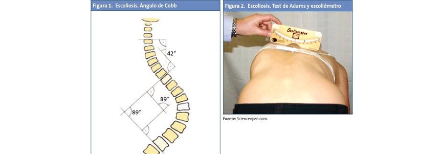 Tratamento-da-Escoliose-4