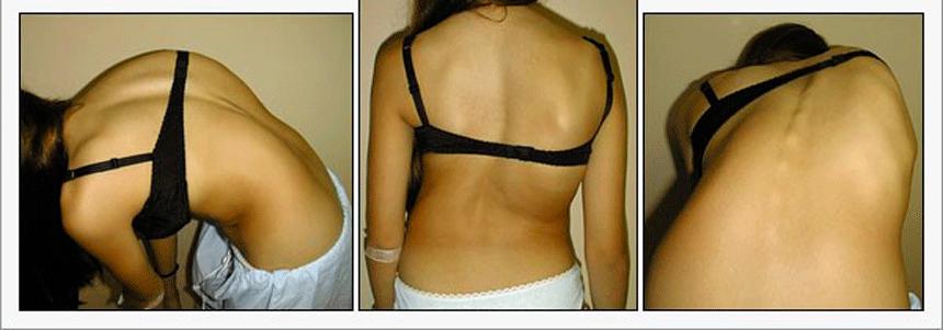 Tratamento-da-Escoliose-6