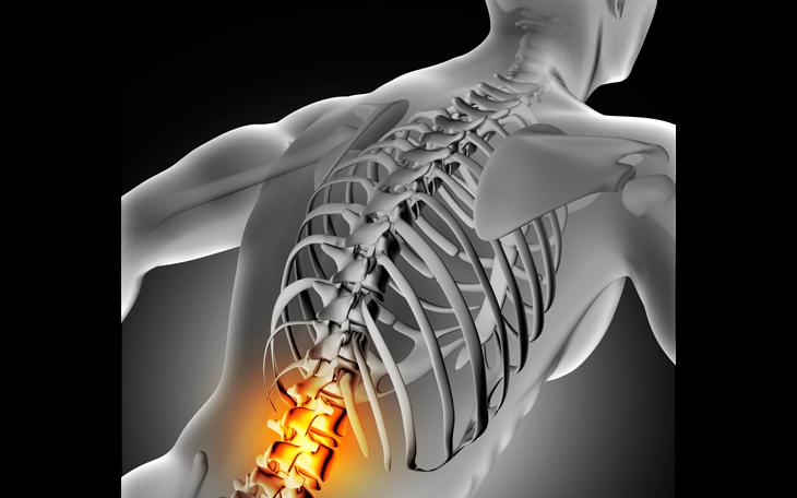 Pilates aplicado à lombalgia: tudo que você precisa saber!