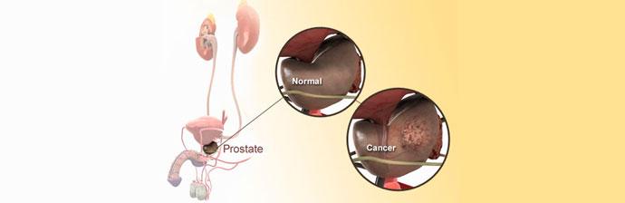 Câncer-de-Próstata