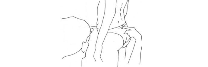 Espondilolistese Lombar 4.2