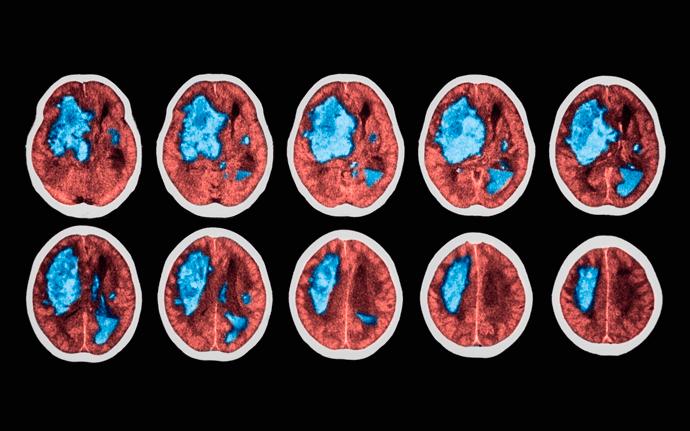 Pilates no Processo de Reabilitação do Acidente Vascular Cerebral (AVC)