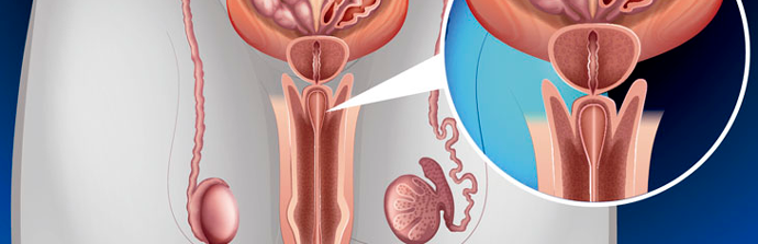 Câncer-de-Próstata-(1)