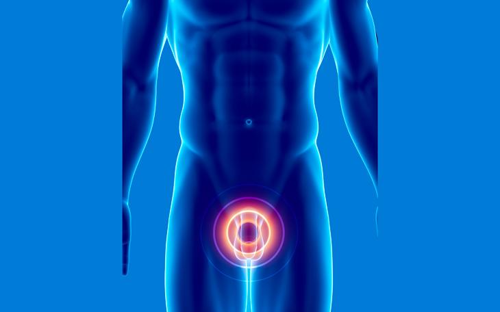 Como o Pilates ajuda no tratamento do Câncer de Próstata