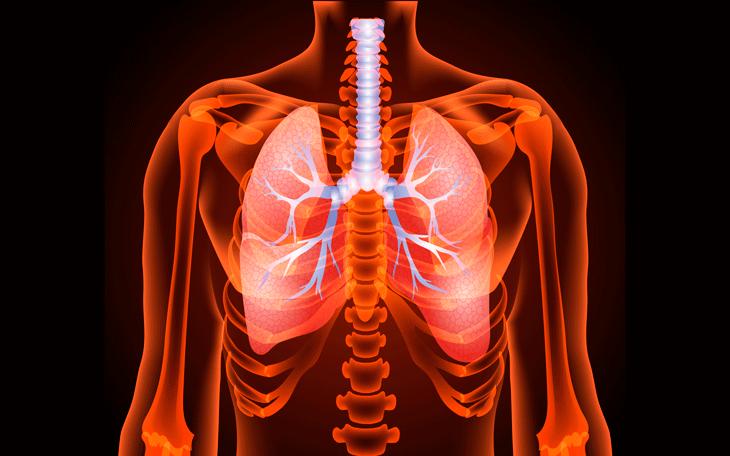 Doença Pulmonar Obstrutiva Crônica: como podemos tratá-la com Pilates?
