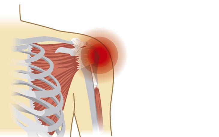 Desequilíbrio Muscular no Plano Frontal na Articulação Gleno Umeral