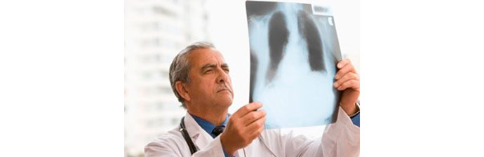 Efisema-Pulmonar-3