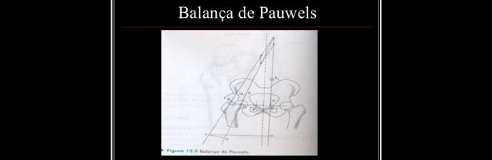 Fraqeuza-muscular-no-quadril-e-dor-lombar-4
