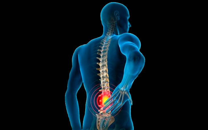 Relação entre a Fraqueza Muscular no Quadril e a Dor Lombar