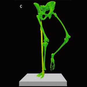 Fraqueza-muscular-no-quadril-e-dor-lombar-6