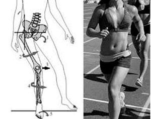 Fraqueza-muscular-no-quadril-e-dor-lombar-7
