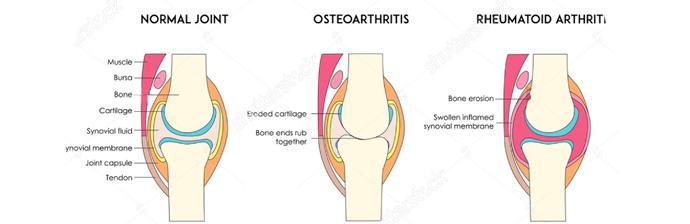 Artrite-1