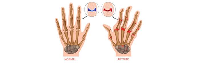 Artrite 4