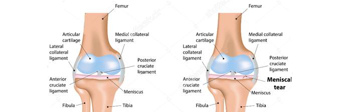 Lesão-de-Menisco-4
