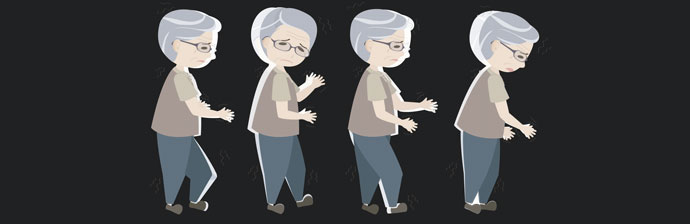 Osteoporose-11