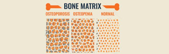 Osteoporose-4
