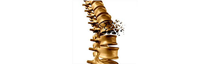 Osteoporose-5