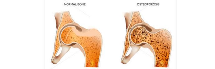 Osteoporose-7