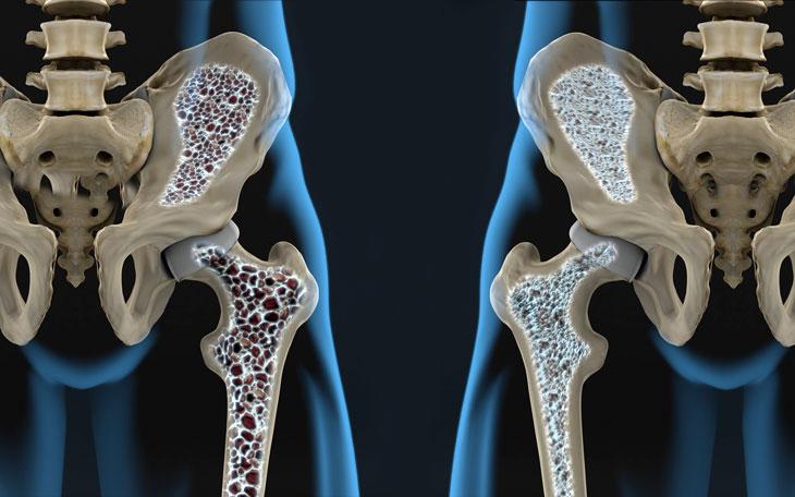 Osteoporose: Como aplicar o Método Pilates como Reabilitação!