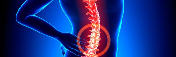 hernia-de-disco-lombar2