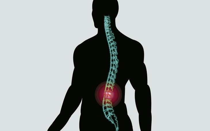 Estabilização Segmentar Vertebral sobre a Dor Lombar Crônica