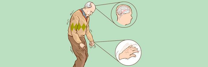 Portadores-de-Parkinson-1