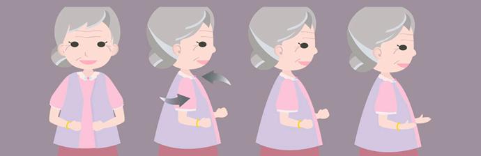 Portadores-de-Parkinson-4