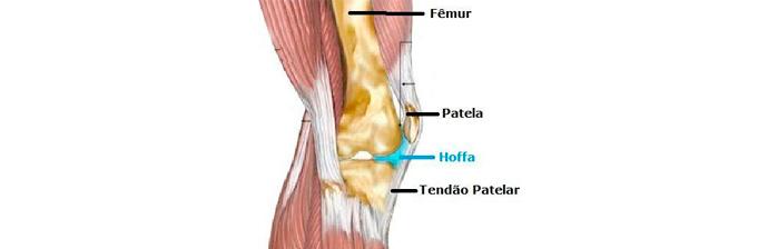 Pilates-na-Síndrome-de-Hoffa