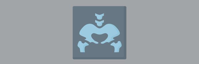 Pilates-no-Tratamento-da-Pubalgia-33