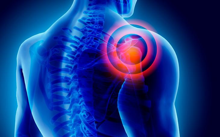 Como utilizar o Pilates na Reabilitação do Ombro
