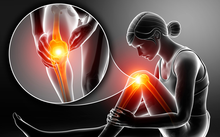 Síndrome de Hoffa: saiba como o Pilates pode ajudar!
