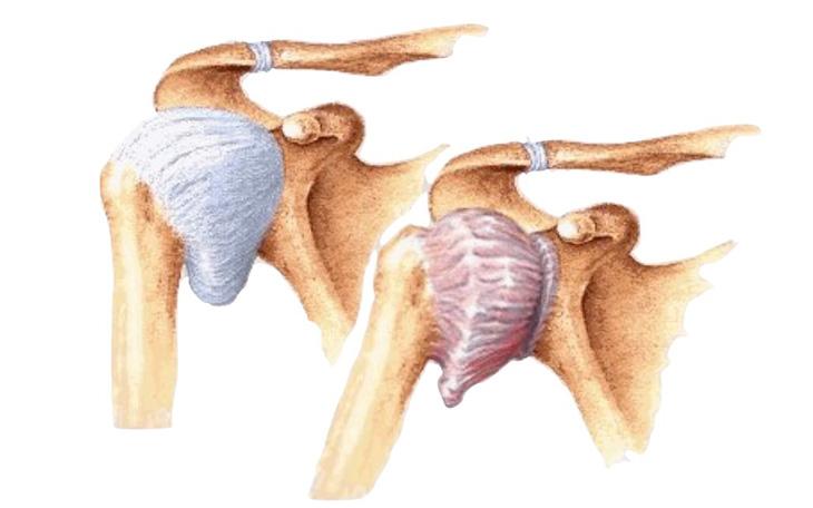 Tratamento da Capsulite Adesiva através do Método Pilates