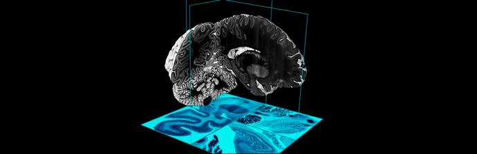 Disfunção-Neurológica-1