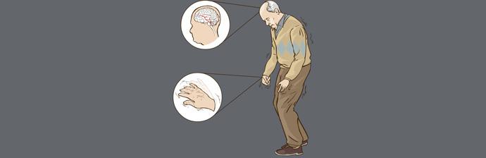 Parkinsonianos-8