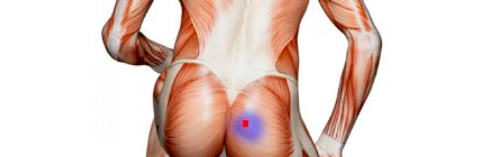 Síndrome-do-Piriforme-1